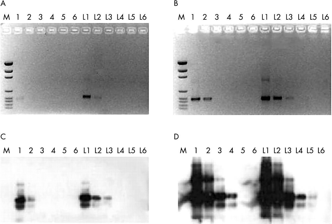 aspergillus fumigatus identification and molecular character Molecular identification:  within a flavus complex remains difficult due to overlapping morphological and biochemical characteristics  aspergillus fumigatus.